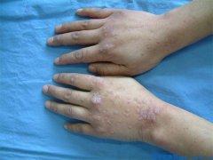扁平疣的典型症状