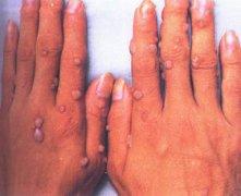 扁平疣有哪些症状