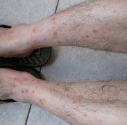 丘疹性荨麻疹图片及症状