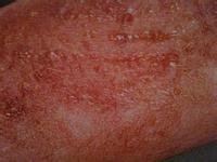 亚急性湿疹患者在饮食上如何