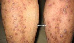 患上结节性痒疹还有治愈的希