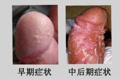 尖锐湿疣哪种药物方法能够彻